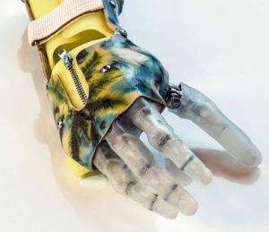 Активный протез кисти